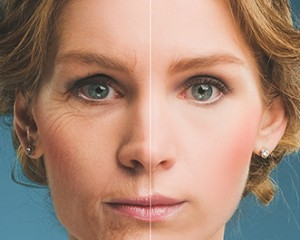 Bondi Junction Cosmetic Injections - Bondi Junction 7 Day ...